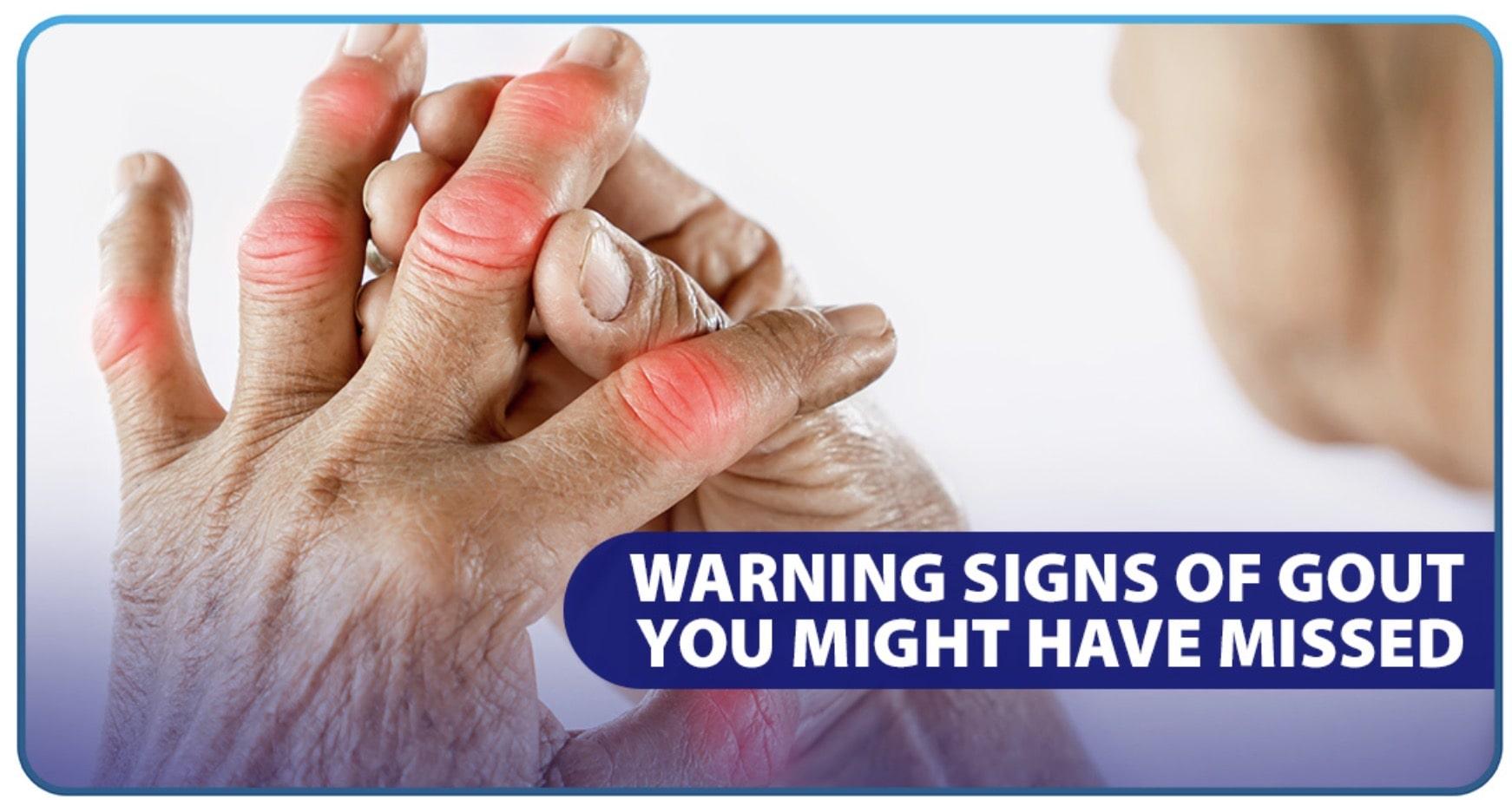 ikaw ba ay may gout? alamin